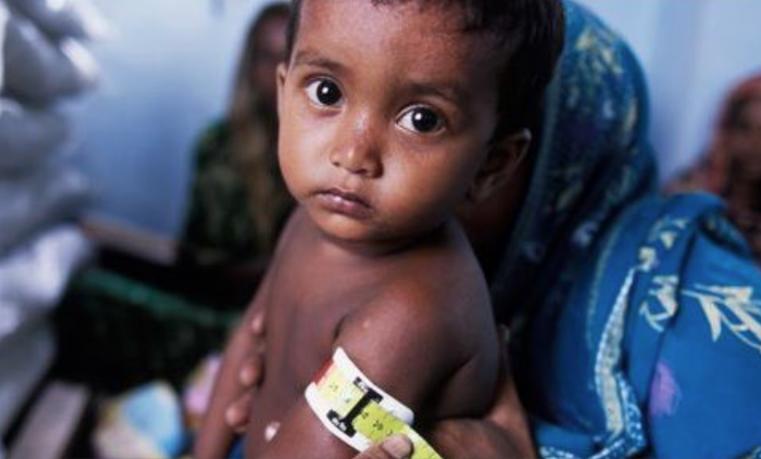 Derechos humanos y desnutrición infantil