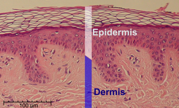 Una nueva terapia genética salva la piel (y la vida) de un niño