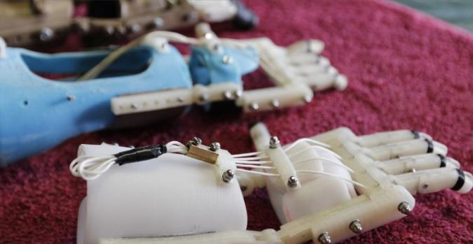 Prótesis de bajo costo impresas en 3D diseñadas en Colombia