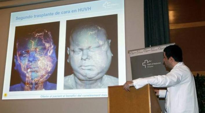 Cuarenta y cinco médicos participan en un trasplante de cara en España