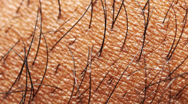 Inventan nueva técnica para injertar cabellos y combatir la calvicie
