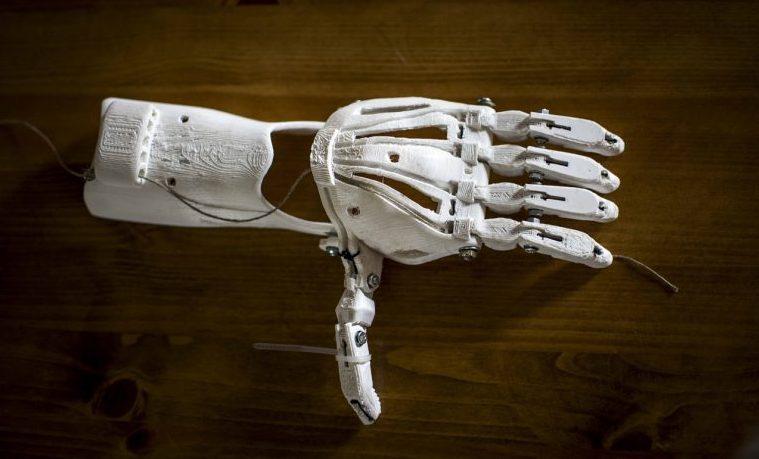 Prótesis en 3D devuelven la esperanza a mutilados de guerra